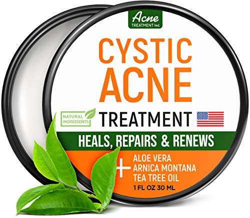 Cystic Acne Treatment and Acne Scar Remover - Made in USA - Effective Face & Body Severe Acne Cleanser with Tea Tree Oil - Prevent Future Breakouts - Natural Acne Spot Pimple Cream - 1 fl.oz