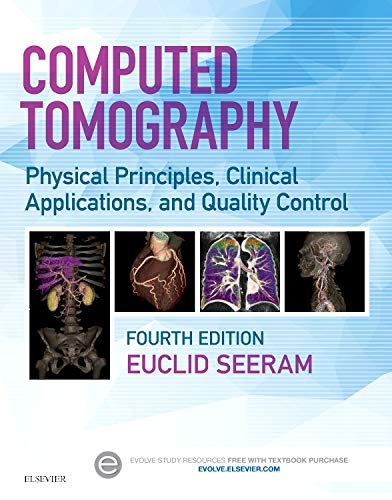 Computed Tomography: Physical Principles, Clinical Applications, and Quality Control